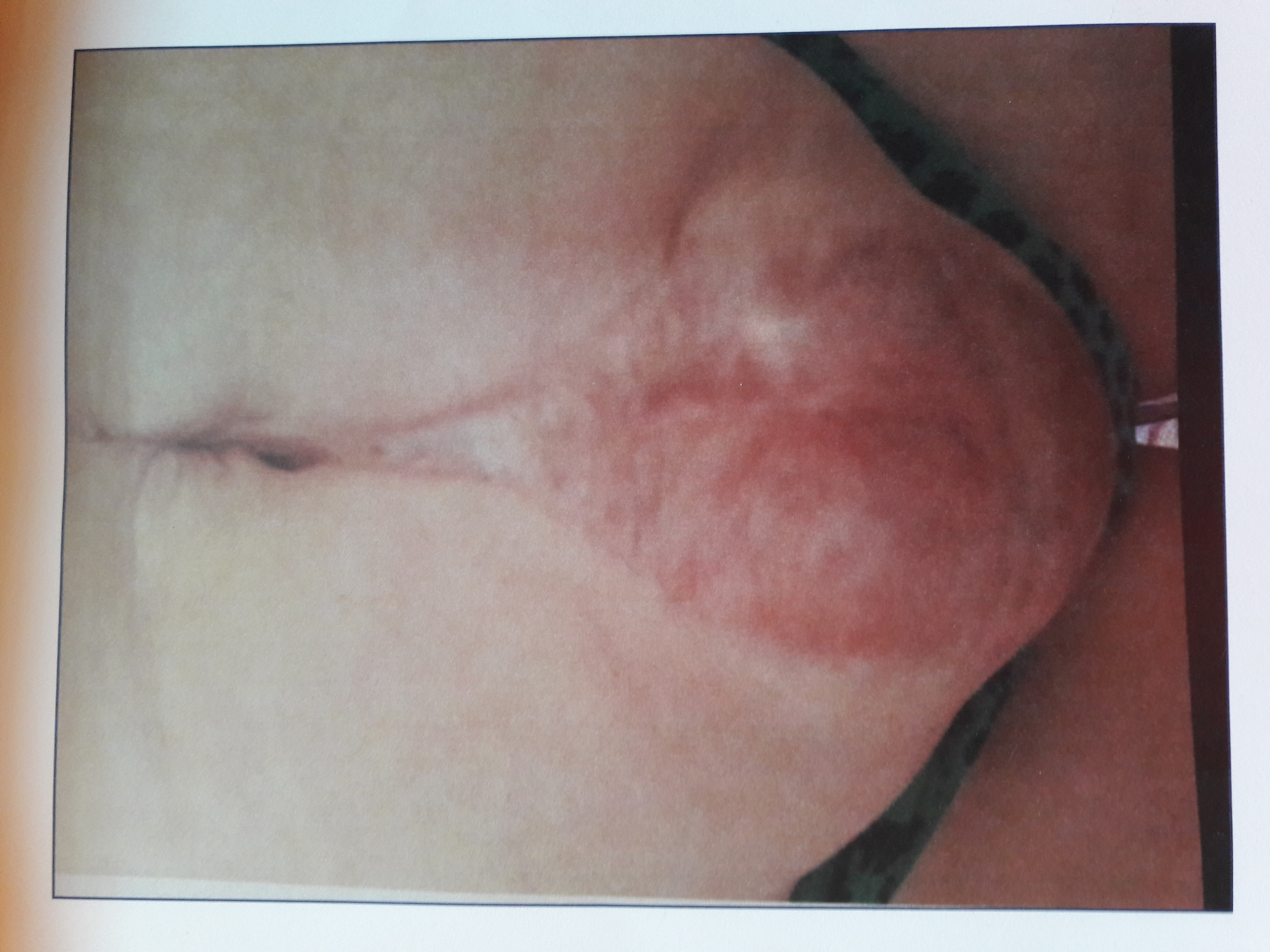 Giant hole (hernia) in abdomen causing disfigurement and disablement.