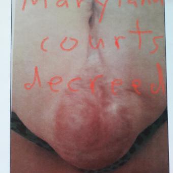 Medical Malpractice in Maryland