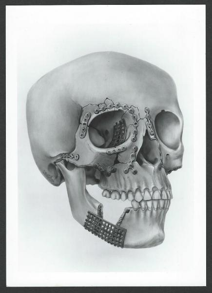 Plating of fractures of the skull.