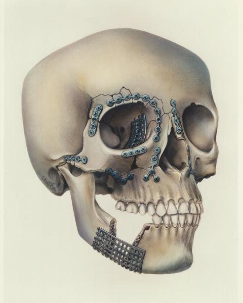 Plating of facial fractures airbrushed illustration