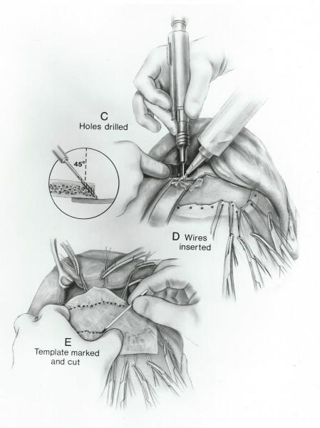 Middle plate of a series designed to teach surgical techniques for the surgical repair of fractured frontal bone of forehead..